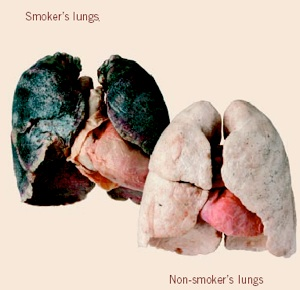 5807_0_lungs___smoker_vs_non_smoker